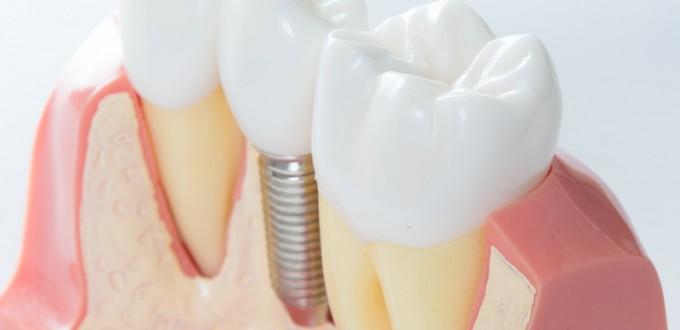 Impianti-dentali-studio dentistico angelini a grosseto