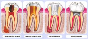Endodonzia e terapia canalare