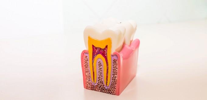 Devitalizzazioni-studio dentistico angelini a grosseto