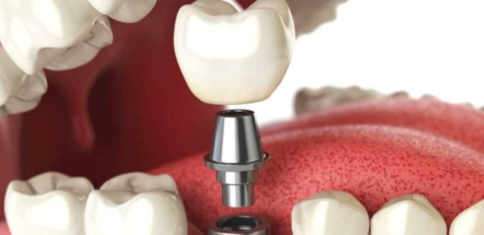 Studio Dentistico Angelini | Dentista a Grosseto | Implantologia a grosseto