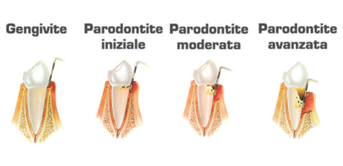 parodontologia come curarla