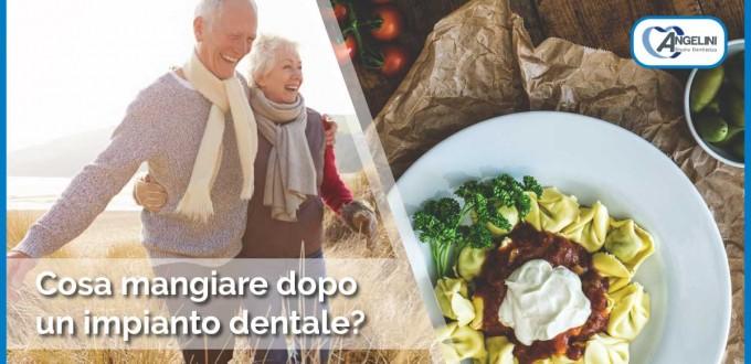 cosa mangiare dopo un impianto dentale | implantologia a Grosseto | Studio Dentistico Angelini