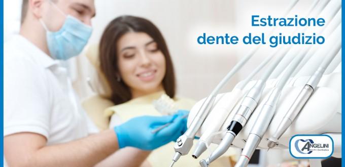Estrazione dente del giudizio 1 | Dentista a Grosseto
